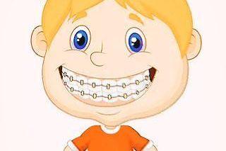 如何节约牙齿矫正时间?