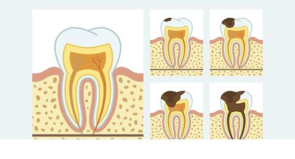 龋齿的临床症状