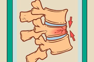 骨质疏松竟有这么可怕的并发症,预防可不止补钙这么简单!