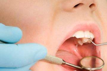 补的牙能用一辈子吗?
