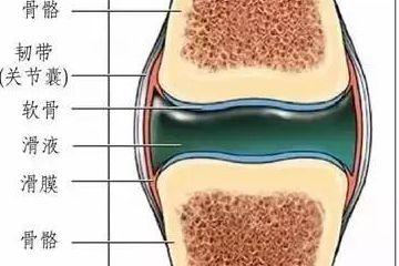 骨科大夫告诉您:膝关节有积液严重吗?该怎么办?